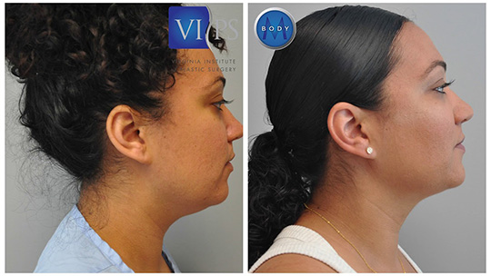 Northern Virginia Neck Lift
