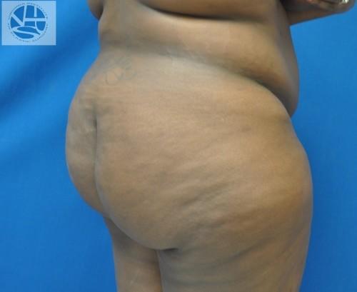 Brazilian Butt Lift Before and After | Little Lipo
