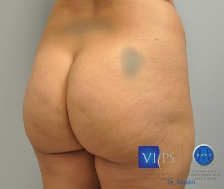 Brazilian Butt Lift Before and After | Little Lipo