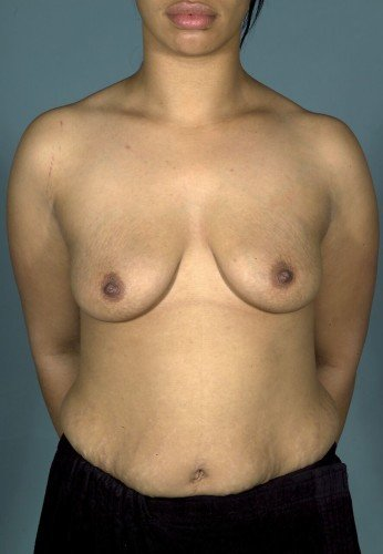 Breast Augmentation With Lift Before and After | Little Lipo
