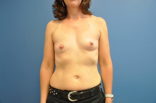 Breast Augmentation Before and After | Little Lipo