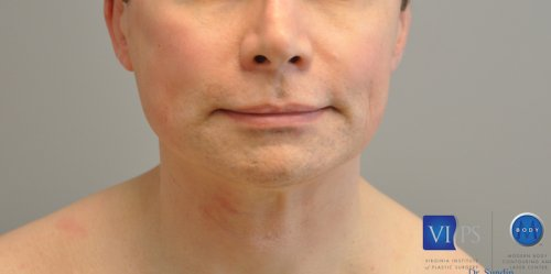 Chin Implant Before and After   Little Lipo