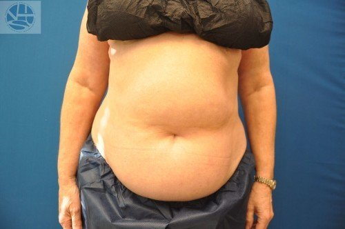 Coolsculpting Abdomen Before and After | Little Lipo