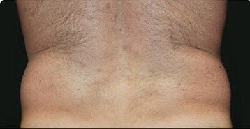 Coolsculpting Flank Before and After | Little Lipo