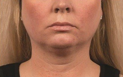Coolsculpting Neck Before and After | Little Lipo