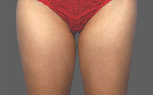 Coolsculpting Thighs Before and After | Little Lipo