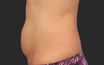 Coolsculpting Before and After | Little Lipo