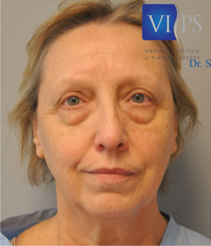 Eyelid Surgery Before and After | Little Lipo