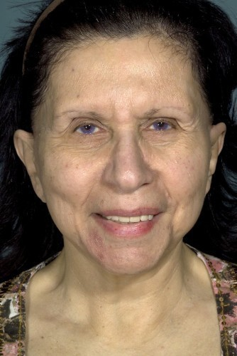 Facelift Before and After   Little Lipo