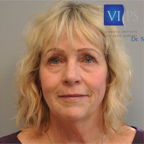 Facelift Before and After | Little Lipo