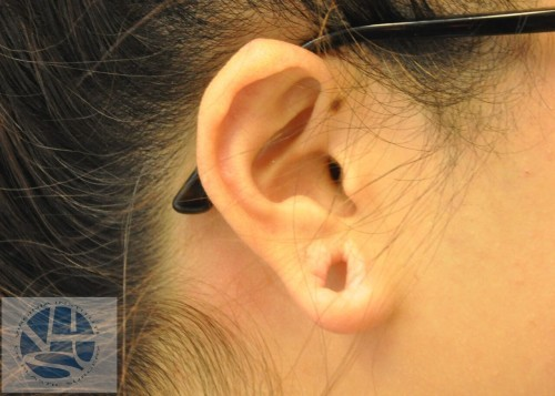 Gauged Earlobes Before and After | Little Lipo