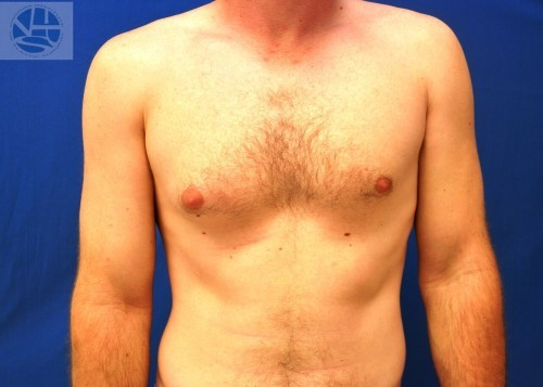 Gynecomastia Before and After | Little Lipo
