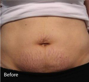 Infini Before and After | Little Lipo