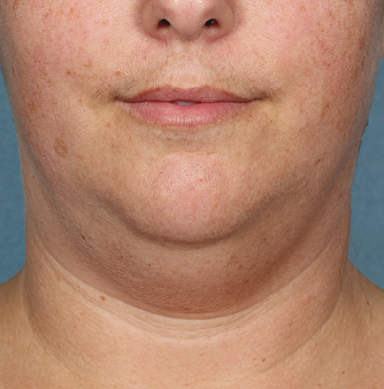 Kybella Before and After | Little Lipo
