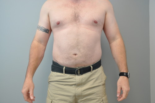 Assisted Liposuction Richmond