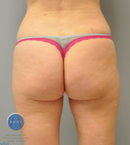 Hip Liposuction Richmond