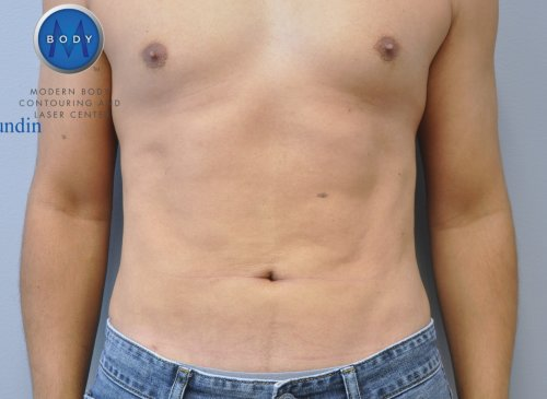 Chest Liposuction Richmond