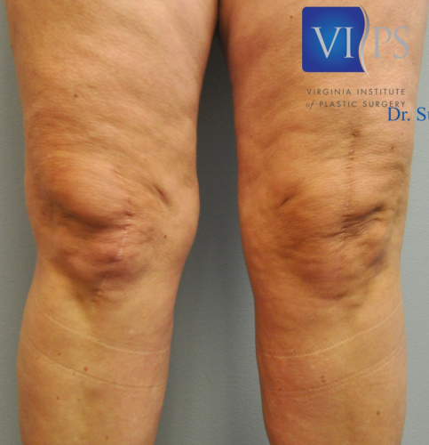Thigh Liposuction Richmond