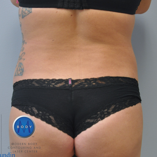 Back Liposuction Richmond