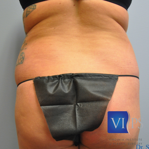 Liposuction Before and After | Little Lipo