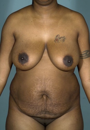 Mommy Makeover Before and After   Little Lipo