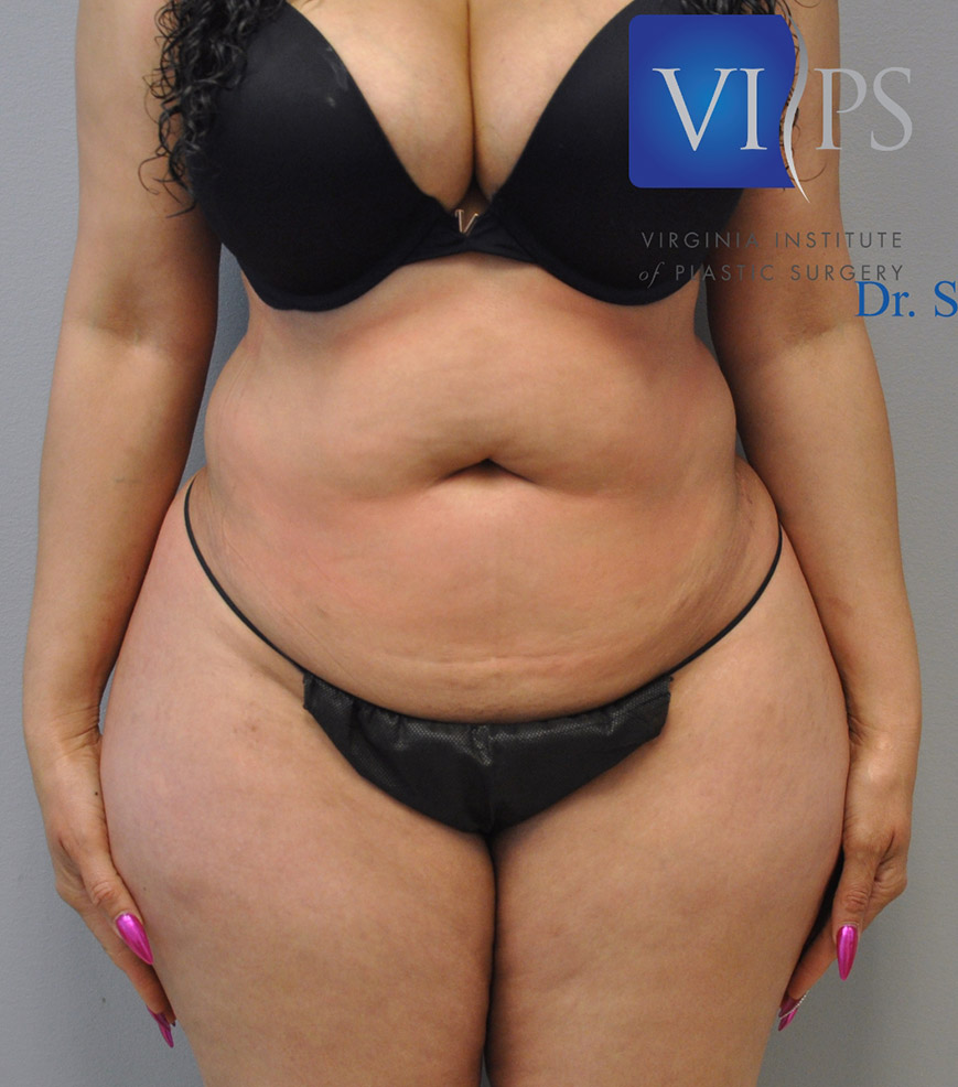 Renuvion J Plasma Before and After | Little Lipo