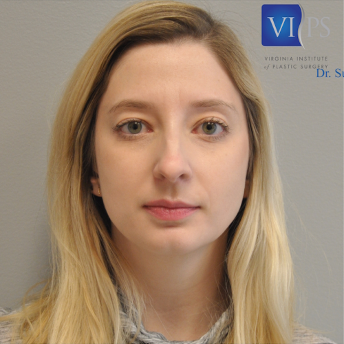 Rhinoplasty Before and After | Little Lipo