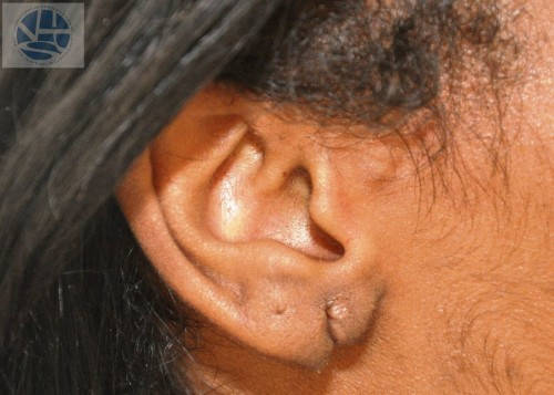 Split Earlobes Before and After | Little Lipo