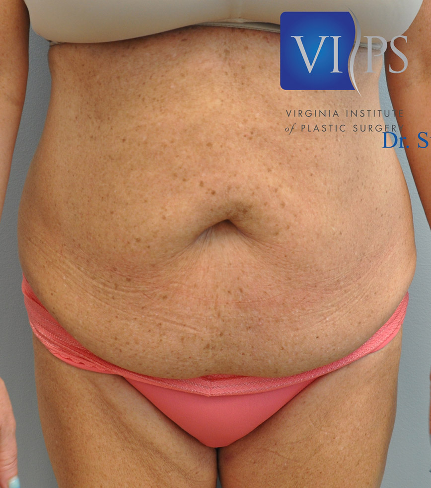 Tummy Tuck Before and After | Little Lipo