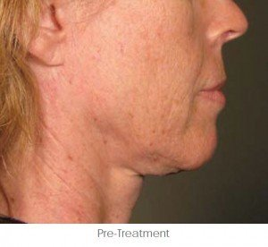 Ultherapy Before and After | Little Lipo